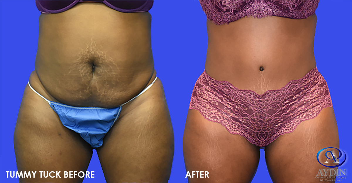 Dr. Aydin's popular Mommy Makeover often includes breast augmentation, a  breast lift, a tummy tuck and liposuction but many patients may only need  one of ...